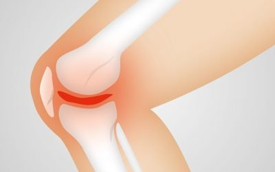 Physiotherapy can help in the Prevention and Treatment of Osteoarthritis